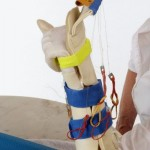 Kombinierte Quengelschiene Extension/Flexion
